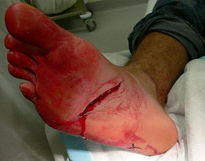 Deep laceration of the foot