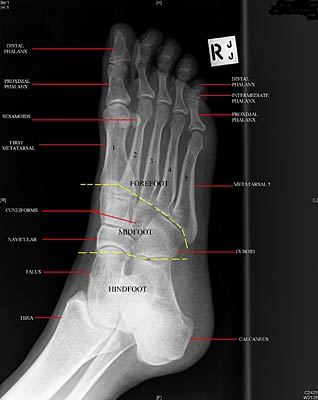 bones of the right foot