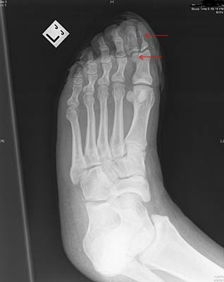 Fracture to distal phalanx