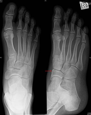 Navicular fracture