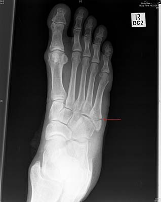 fracture to fifth metatarsal