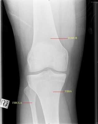 X-ray 1: View of the right knee front-on showing the femur, tibia and fibula