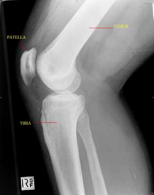 X-ray 2: Lateral view of the right knee showing the femur, tibia and patella